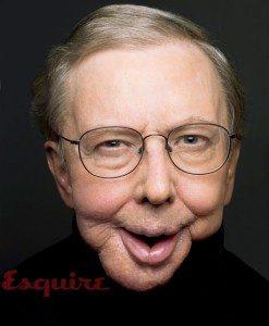 Roger Ebert Jaw Cancer Survivor